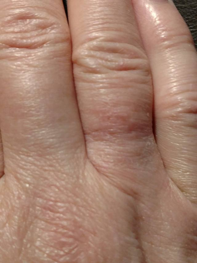 Ring Finger - 1 Week Later